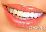 محلول های سفید کننده دندان