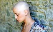بازگرداندن موهای ریخته شده بعد سرطان