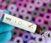فرم تهاجمی ویروس ایدز در کوبا