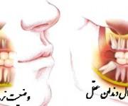 چگونه درد دندان عقل را تسکین دهید؟