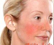 پوست حساس