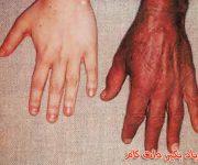 سرریزی آهن در خون یا هموکروماتوز