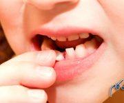 اولین در آمدن و اولین افتادن دندان