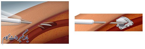 نحوه قرارگیری سوزن در فیستول در دیالیز