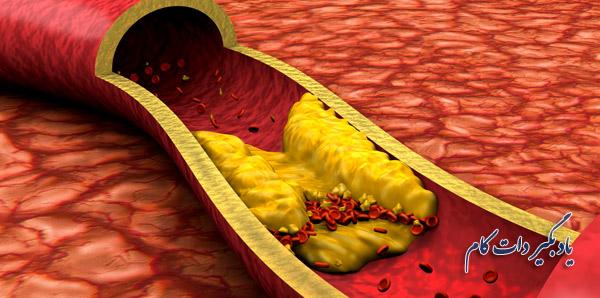 طریقه تشخیص لخته خون در رگها
