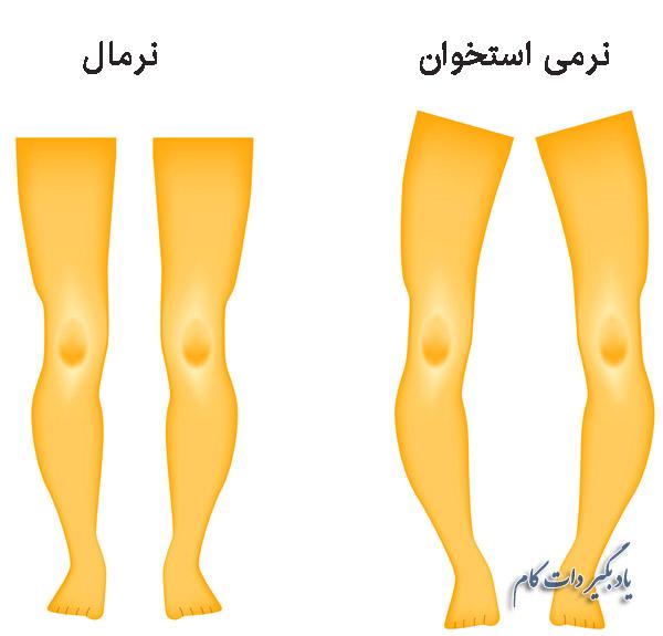 نرمی استخوان، علایم درمان و پیشگیری