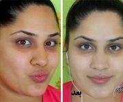 قبل و بعد از مصرف سفید کننده مناسب پوست