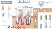 اینفوگراف ایمپلنت دندانی