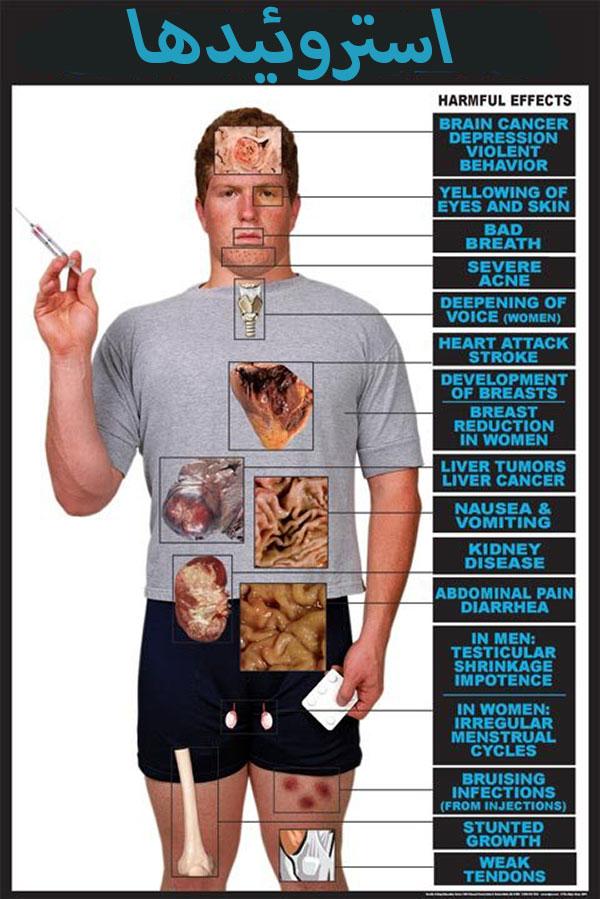 اثرات جانبی استروئیدهای آنابولیک