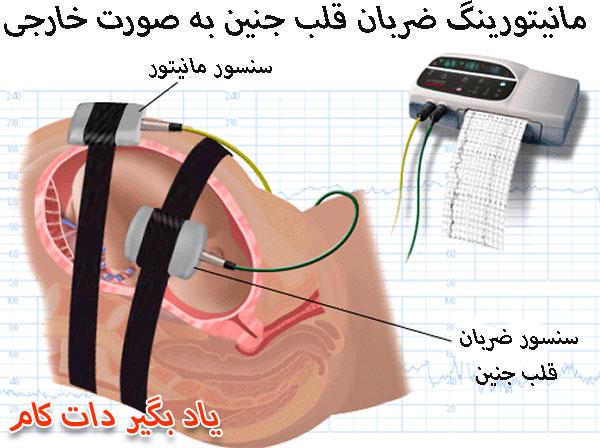 تشخیص ضربان قلب جنین در بارداری