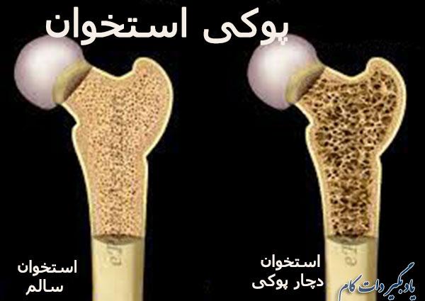 پیشگیری از پوکی استخوان در مردان