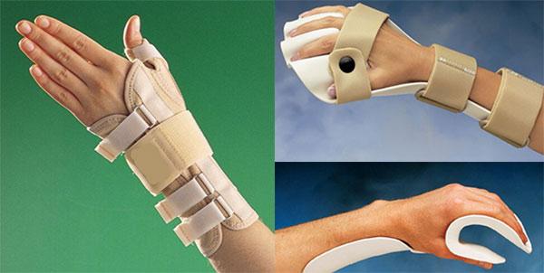 اسپلینت برای تسکین درد مفاصل