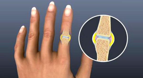 اثرات روماتیسم مفصلی روی دست ها و انگشتان
