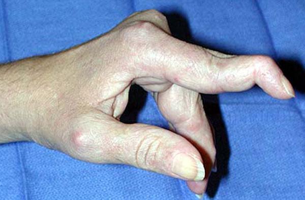 دفورمیتی بوتونیر یا بد شکلی انگشت جا دکمه ای